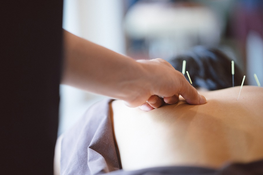 How Acupuncture Treatments Can Reduce Pain and Inflammation